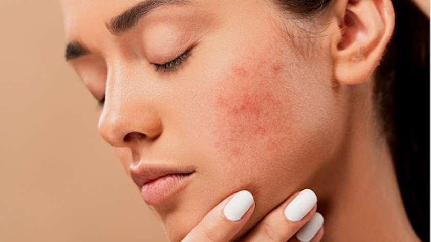 CBD for your Skin